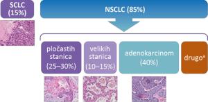 Slika 1. Podvrste raka pluća [2]