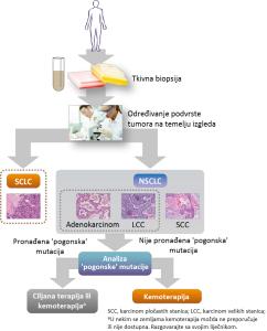 Slika 3. Analiza tkiva u molekularnom testiranju kod NSCLC‑a